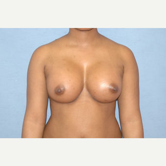 25-34 year old woman treated with Breast Augmentation after 3378068