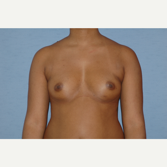 25-34 year old woman treated with Breast Augmentation before 3378068