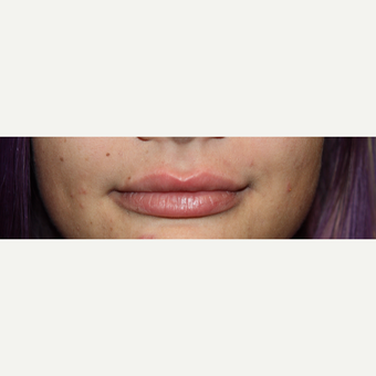25-34 year old woman treated with Lip Augmentation after 3566299