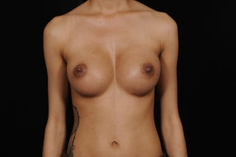 Breast Augmentation for Slender Body Type after 1364862