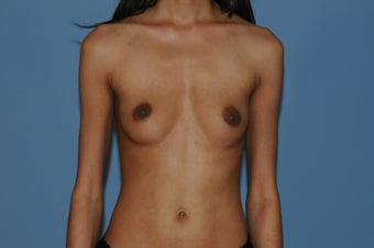 Breast Augmentation for Slender Body Type before 1364862