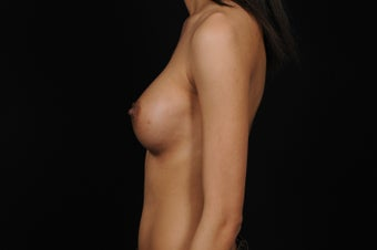 Breast Augmentation for Slender Body Type 1364862