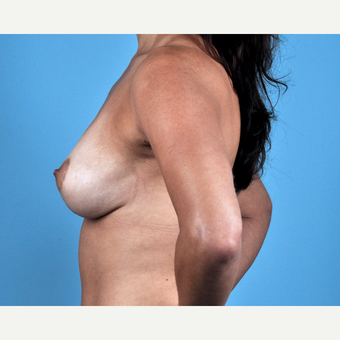 35-44 year old woman treated with Breast Lift after 3837637