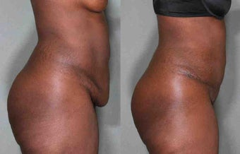 44 Year Old Female Treated for Unwanted Belly Fat before 1046564