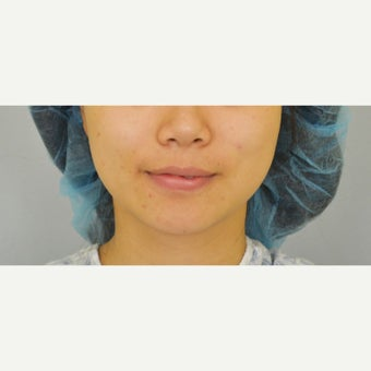 25-34 year old woman treated with Buccal Fat Removal before 2171879