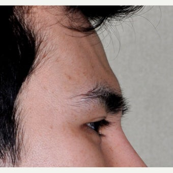 25-34 year old man treated with Forehead and Brow Augmentation before 2452917