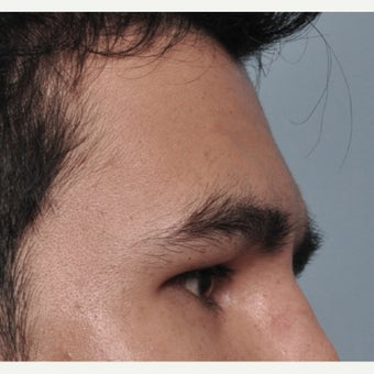 25-34 year old man treated with Forehead and Brow Augmentation after 2452917