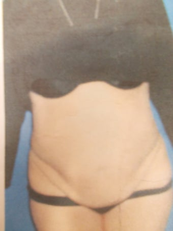 55 Year Old Woman Treated With Tummy Tuck before 905137