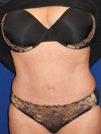 55 Year Old Woman Treated With Tummy Tuck after 905137