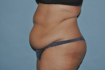 45-54 year old woman treated with Drainless Tummy Tuck 1672440