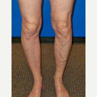 46 year old female after vein treatment