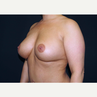 35-44 year old woman treated with Breast Implants after 3441086