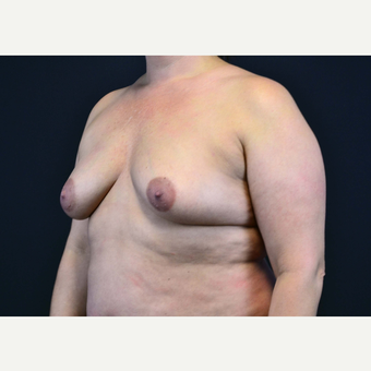 35-44 year old woman treated with Breast Implants before 3441086