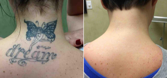 25-34 year old woman treated with Tattoo Removal before 1909931