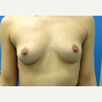 25-34 year old woman treated with Breast Augmentation before 1553690