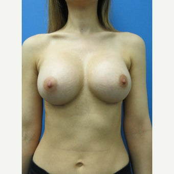 25-34 year old woman treated with Breast Augmentation after 1553690