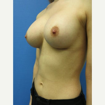 25-34 year old woman treated with Breast Augmentation 1553690