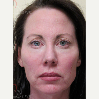 45-54 year old woman treated with Liquid Facelift after 3235358