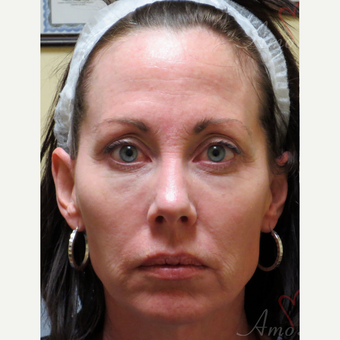 45-54 year old woman treated with Liquid Facelift before 3235358