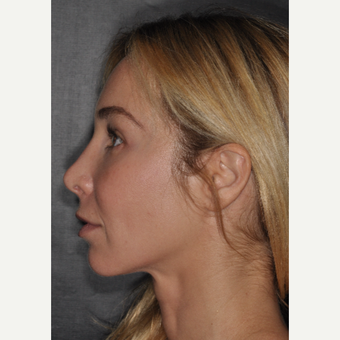 35-44 year old woman treated with Brow Lift 2 weeks post-op after 3452221