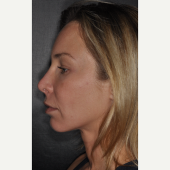 35-44 year old woman treated with Brow Lift 2 weeks post-op before 3452221