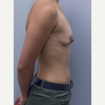25-34 year old woman treated with Breast Augmentation before 3177017