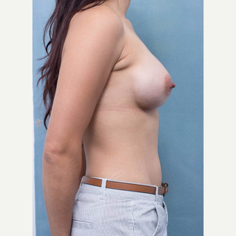 25-34 year old woman treated with Breast Augmentation after 3177017