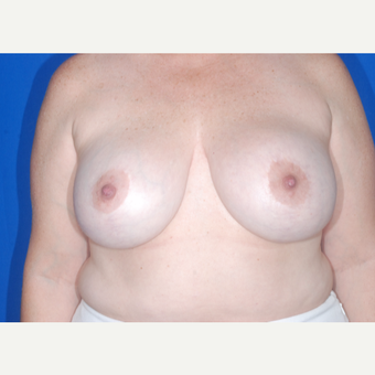 35-44 year old woman treated with Breast Reduction before 3695117