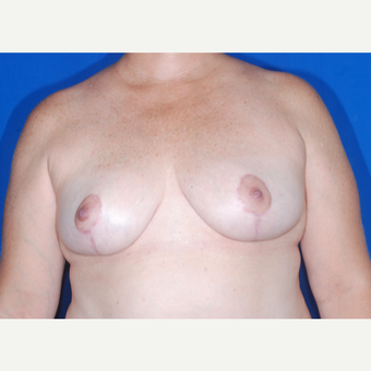 35-44 year old woman treated with Breast Reduction after 3695117