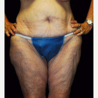 45-54 year old woman treated with Body Lift before 3142410