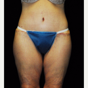 45-54 year old woman treated with Body Lift after 3142410