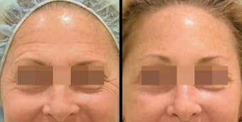 Endoscopic Brow Lift + Lower Blepharoplasty before 658001