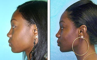 Nose Job- Rhinoplasty before 1116920