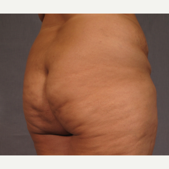 35-44 year old woman treated with Brazilian Butt Lift before 3176641