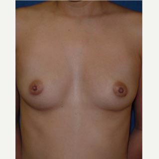18-24 year old woman treated with Breast Augmentation before 3583243