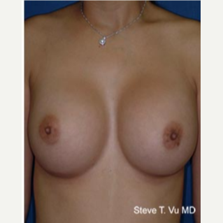 18-24 year old woman treated with Breast Augmentation after 3583243