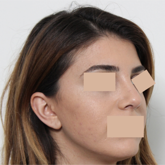 25-34 year old woman treated with Rhinoplasty after 3442476