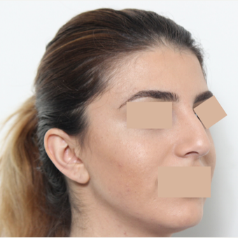 25-34 year old woman treated with Rhinoplasty before 3442476
