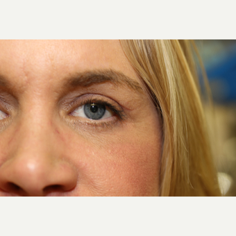 45-54 year old woman treated with Eye Bags Treatment after 3837303
