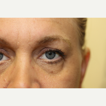 45-54 year old woman treated with Eye Bags Treatment before 3837303