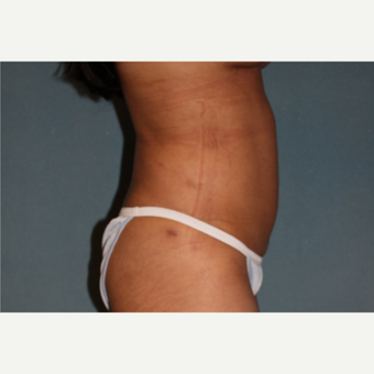 35-44 year old woman treated with Liposuction after 3253540