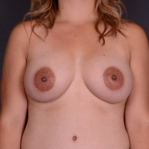 25-34 year old woman treated with Breast Augmentation after 3240109