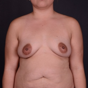 25-34 year old woman treated with Breast Augmentation before 3240109