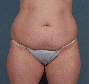 Tummy Tuck, Liposuction before 313075