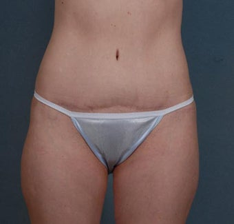 Tummy Tuck, Liposuction after 313075