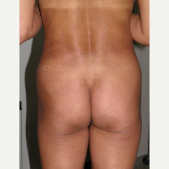 35-44 year old woman treated with Butt Implants before 1854010