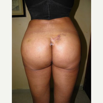 35-44 year old woman treated with Butt Implants after 1854010