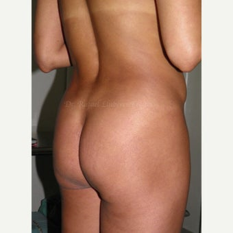 35-44 year old woman treated with Butt Implants 1854010