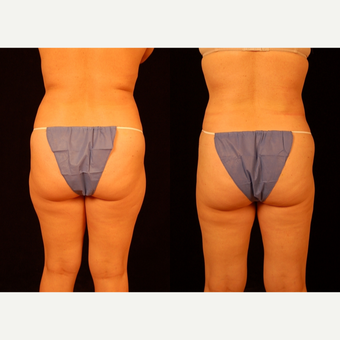 35-44 year old woman treated with Liposuction after 3659448