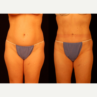 35-44 year old woman treated with Liposuction before 3659448